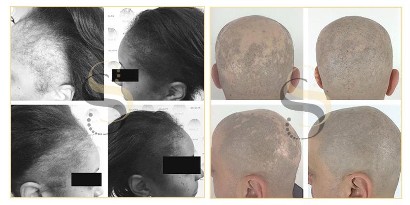 Alopecia Clients - Nashville
