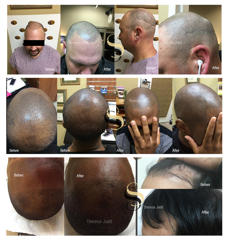 Hairline Pigmentation for Men and Women