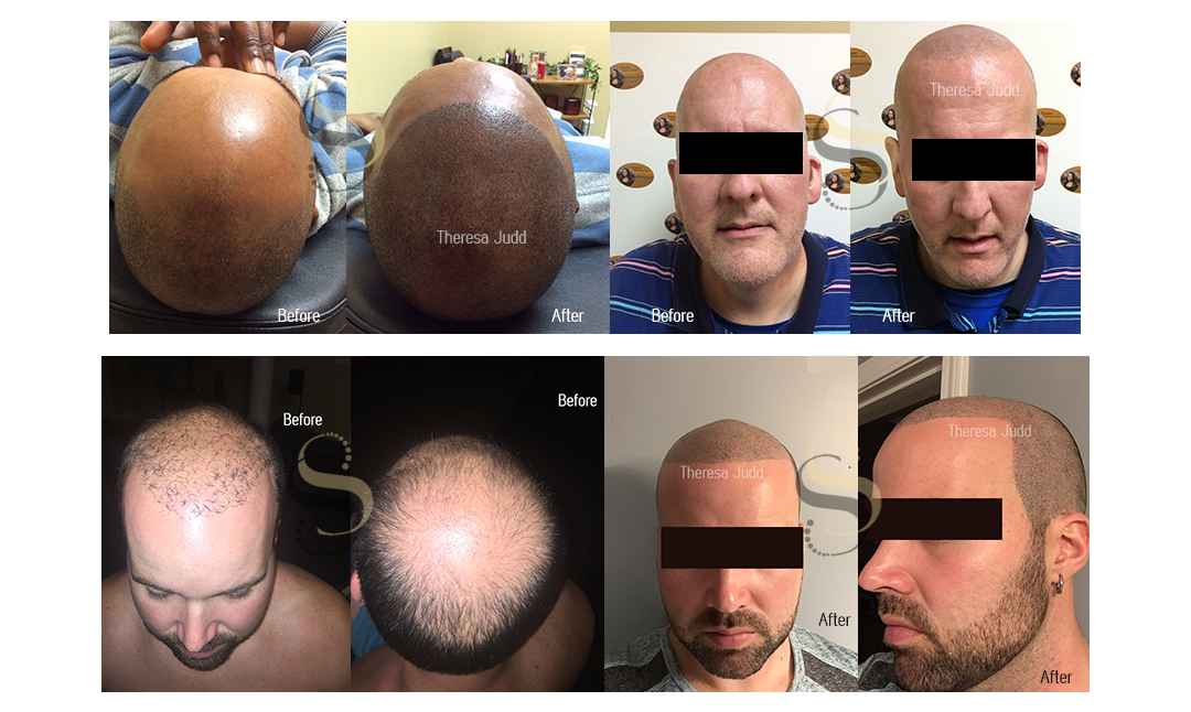 Scalp Solutions in Nashville TN