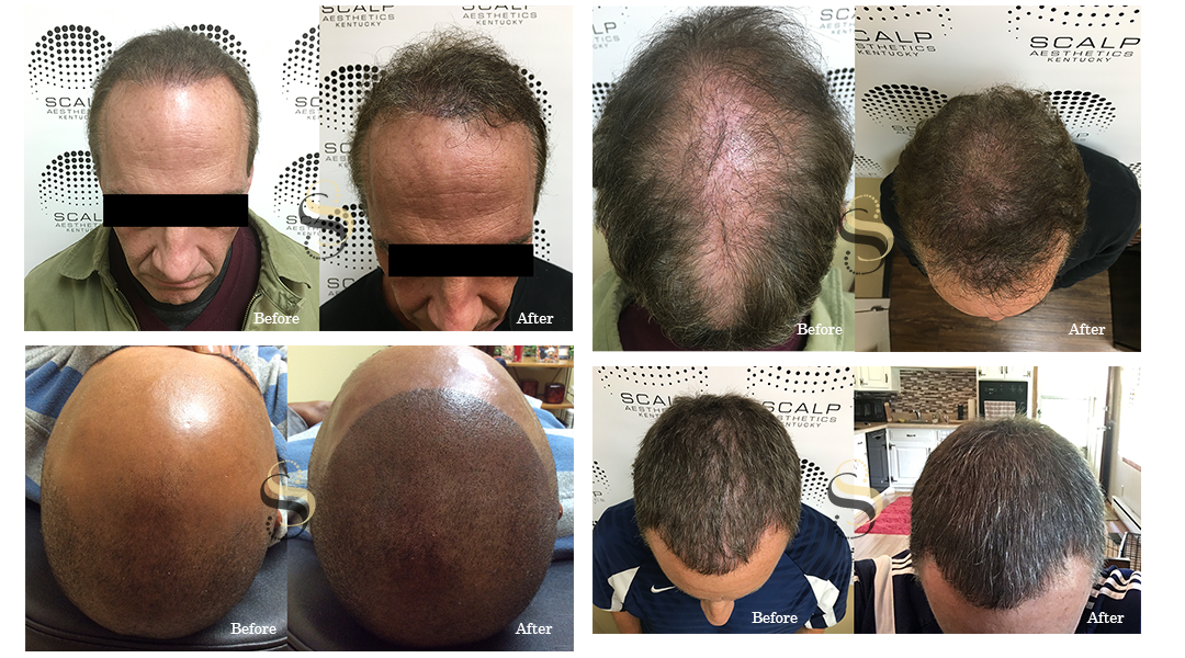 Scalp Micropigmentation - Nashville TN