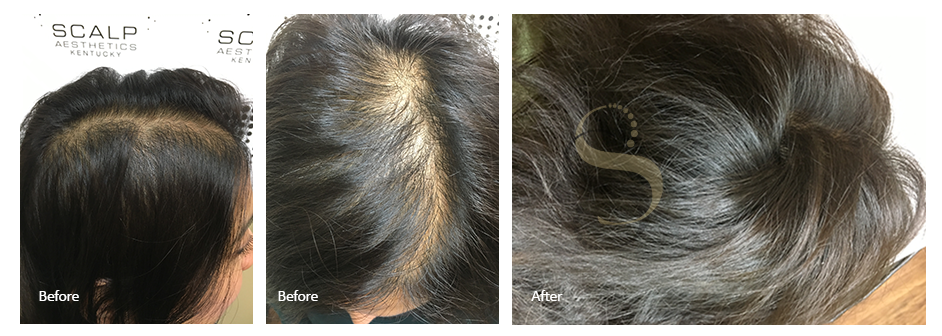 Female Scalp Micropigmentation Nashville