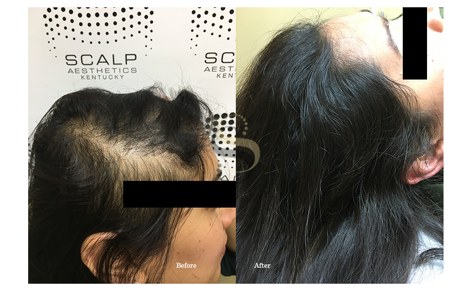 Hairline Restoration - Scalp Solutions Nashville